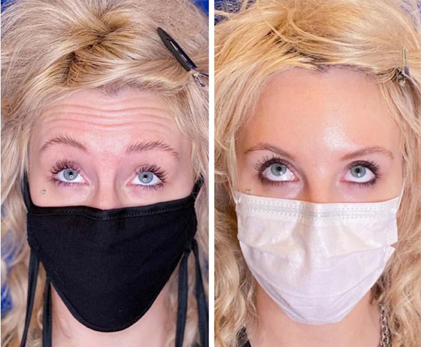 Botox lica NS