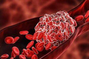krvni-ugrusci