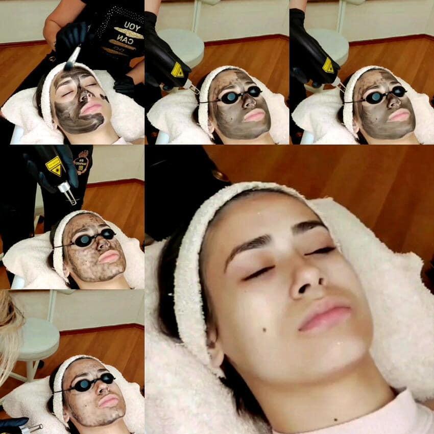 carbon peel - laserski piling lica