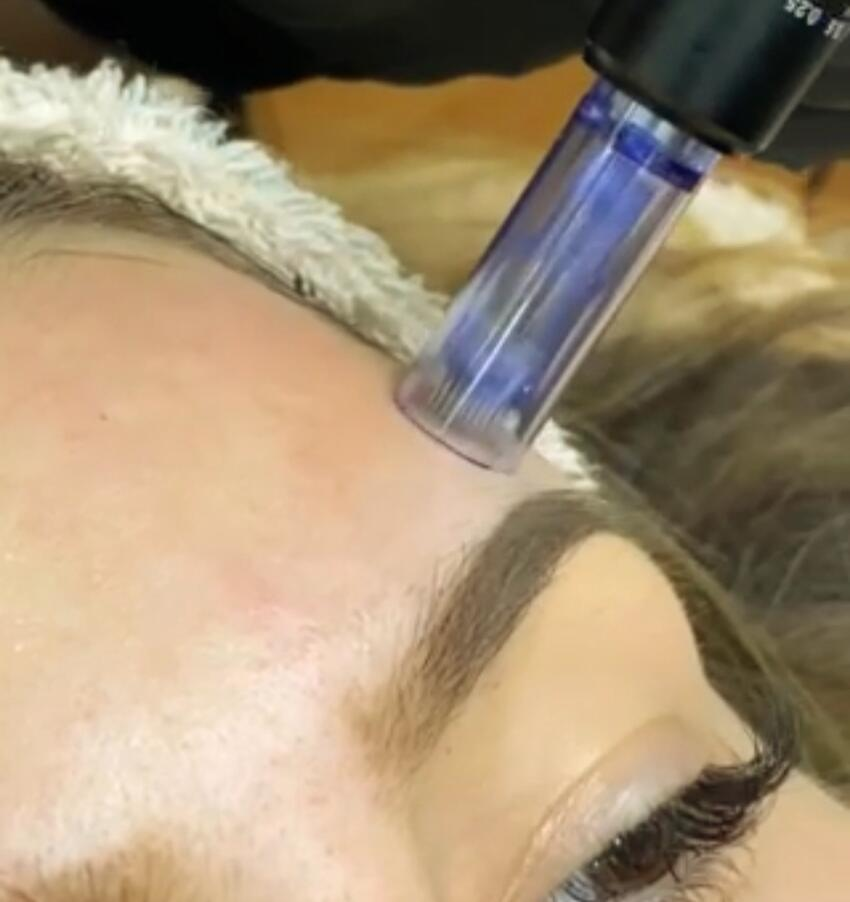 derma pen (microneedling) - mezo skin line fresh vitamin coctail (1)
