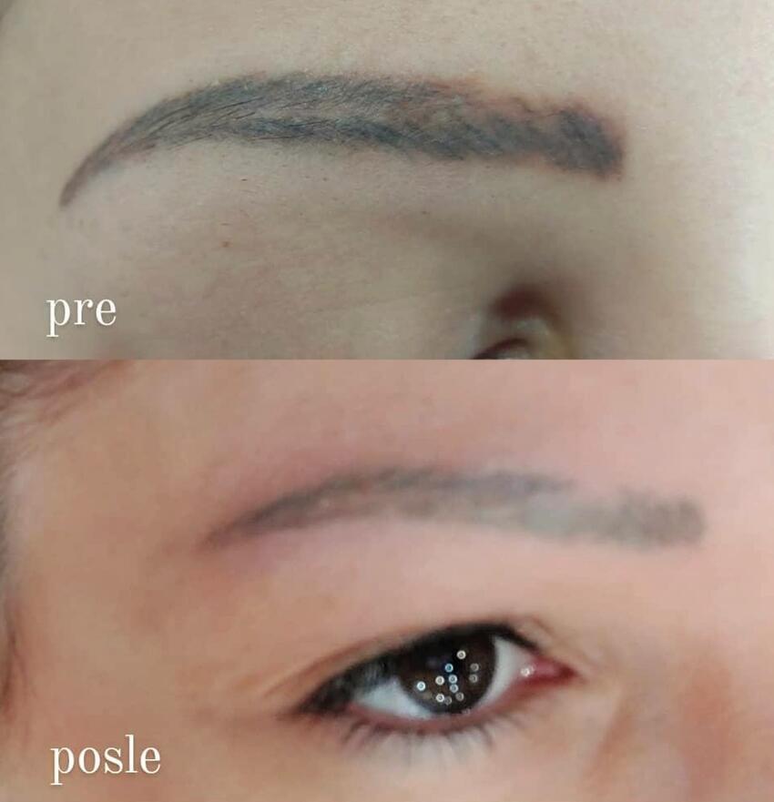 lasersko uklanjanje trajne šminke - rezultat odmah nakon prvog tretmana (1)
