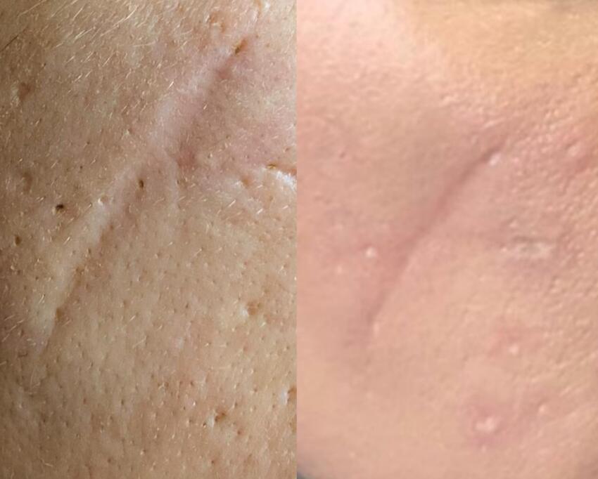 redukcija ožiljaka - rezultat nakon prvog tretmana (1)